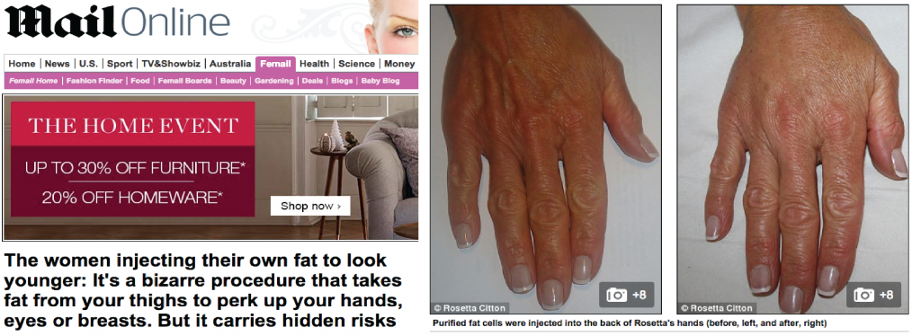 The women injecting their own fat to look younger   Daily Mail Onlinea