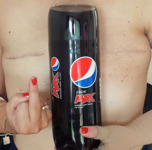 Brave woman shows her double mastectomy to protest coke challenge   The Sun  News copya